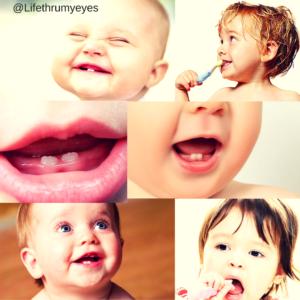 Top Dental Care Tips for Your Baby's Gums and Crowning Teeth