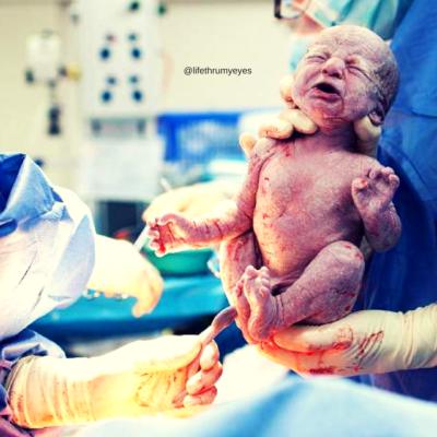 Vaginal Birth After Cesarean Section-VBAC